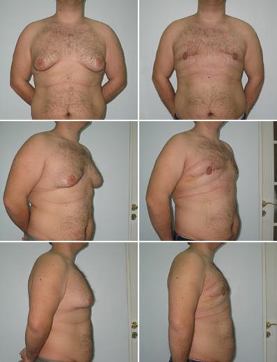 увеличение правой груди