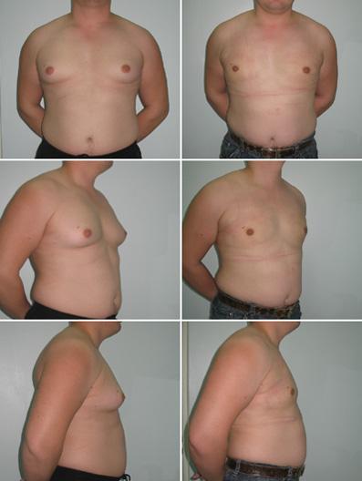Липосакция грудных желез у мужчин цена