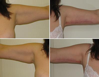 Липосакция рук фото до и после отзывы
