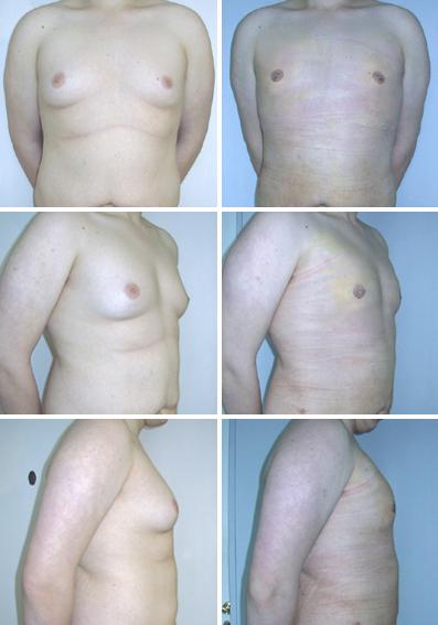 Заменить импланты груди